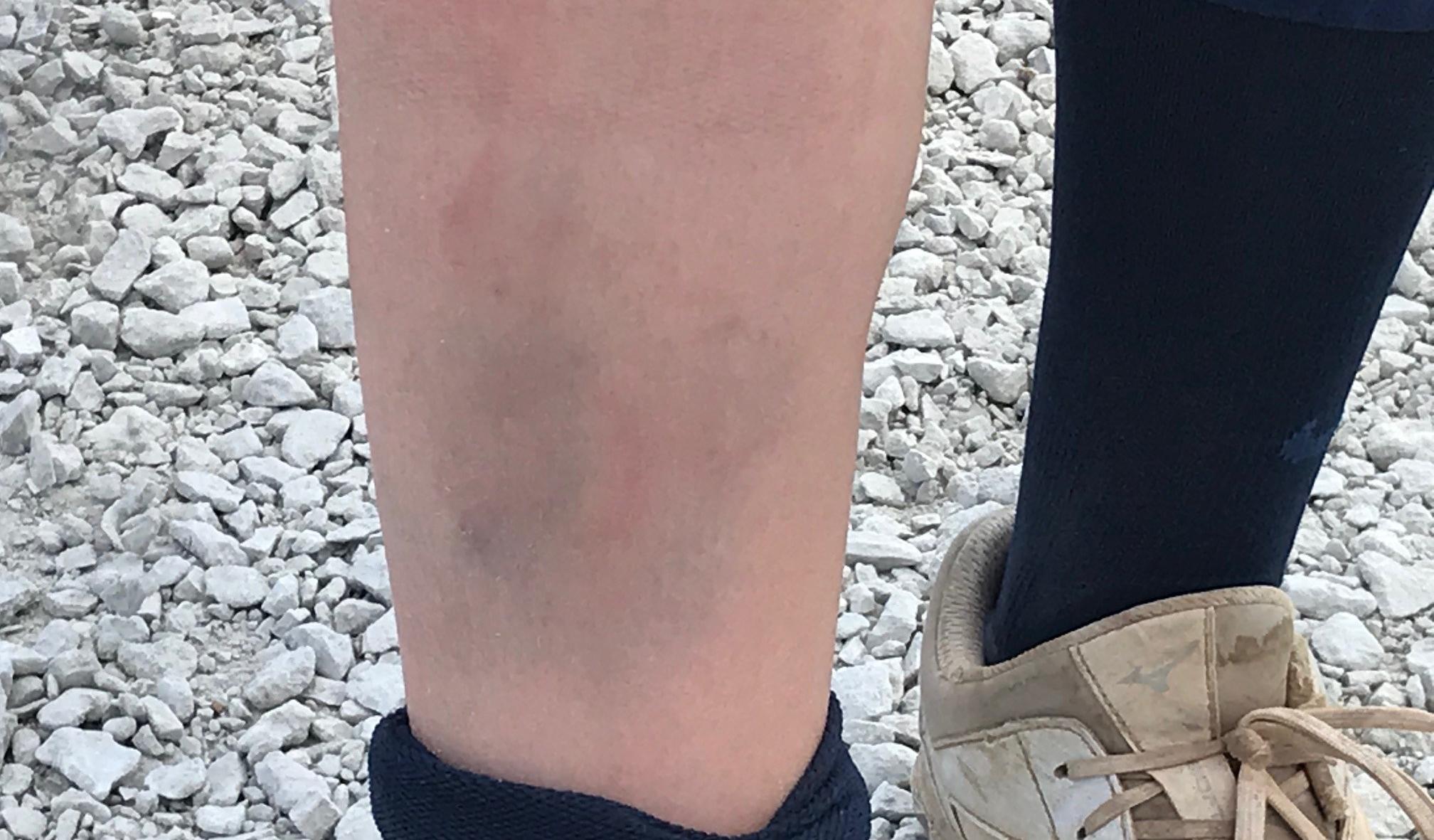 Maddy leg closeup
